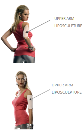 upper arms